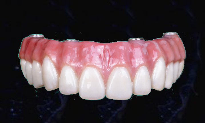Bruxzir Full Arch Implant Prosthesis Nobel Dental Art